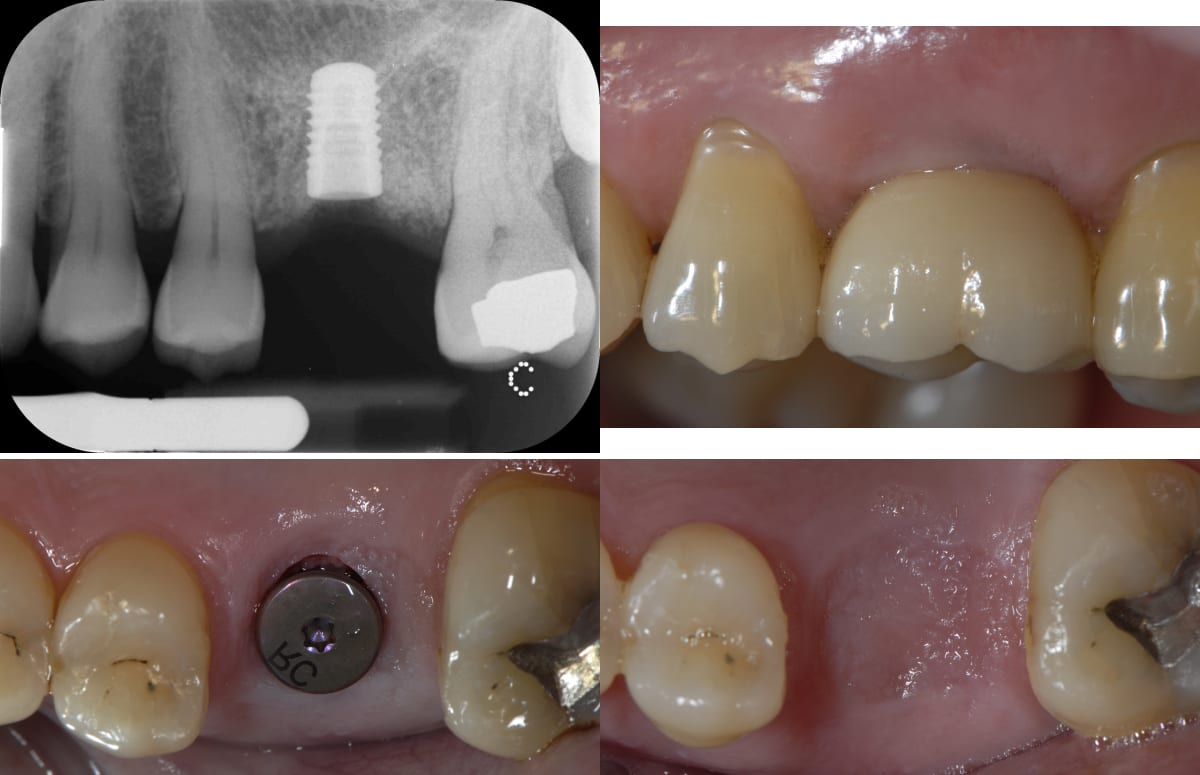 Dental Implant Installation Collage