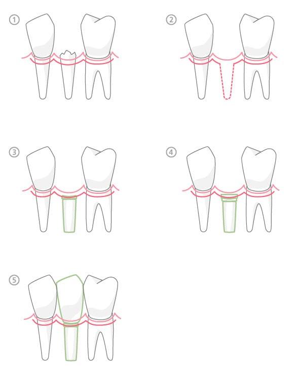 dentalimplant1